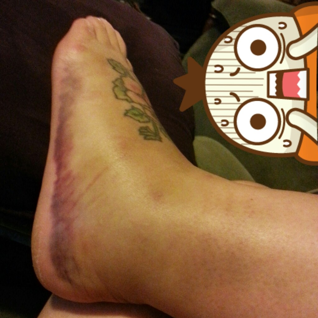 My foot a few days after the fall